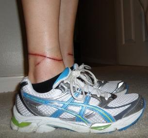 травма ног от поводка