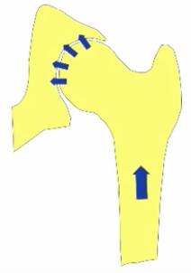 нестабильность головки бедренной кости
